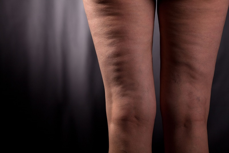 8 طرق لعلاج السيلوليت والتخلص من الدهون العنيدة شلون